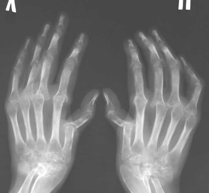 псориатический артрит лечение отзывы