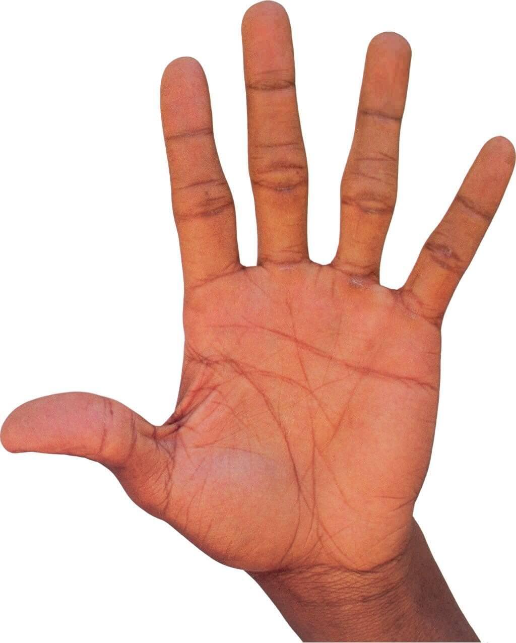 Сухая экзема на руках чем лечить